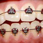 Zobni aparat je zagotovilo za lep nasmeh